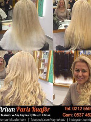 Saç Kaynak Hakkında Bilinmesi Gerekenler