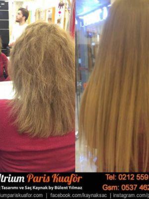 Saç Kaynak Nasıl Yapılır?